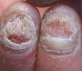 患有灰指甲,手指甲或脚趾甲多呈灰白色,有时变为褐色.且失去光泽