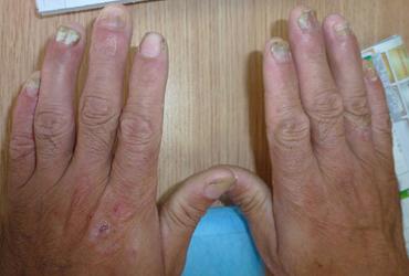 )甲.如果十个手指甲或脚趾甲同时发病,则往往是全身性疾病的一种